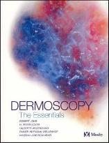 Dermoscopy