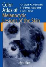 Color Atlas of Melanocytic Lesions of the Skin